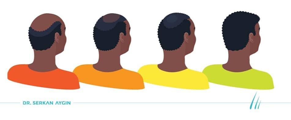Greffe de cheveux afro Turquie