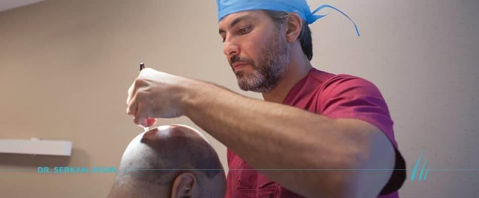 poznaj i najskuteczniejsze metody w walce z łysieniem w Turcji