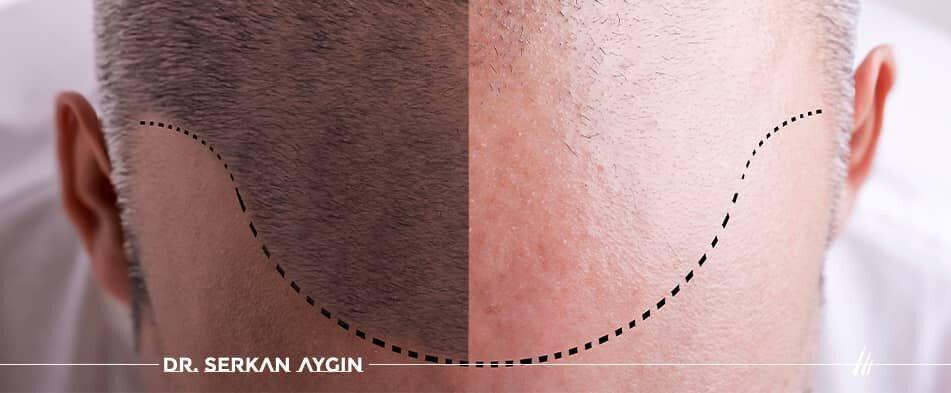 корректировка волос после пересадки  волос