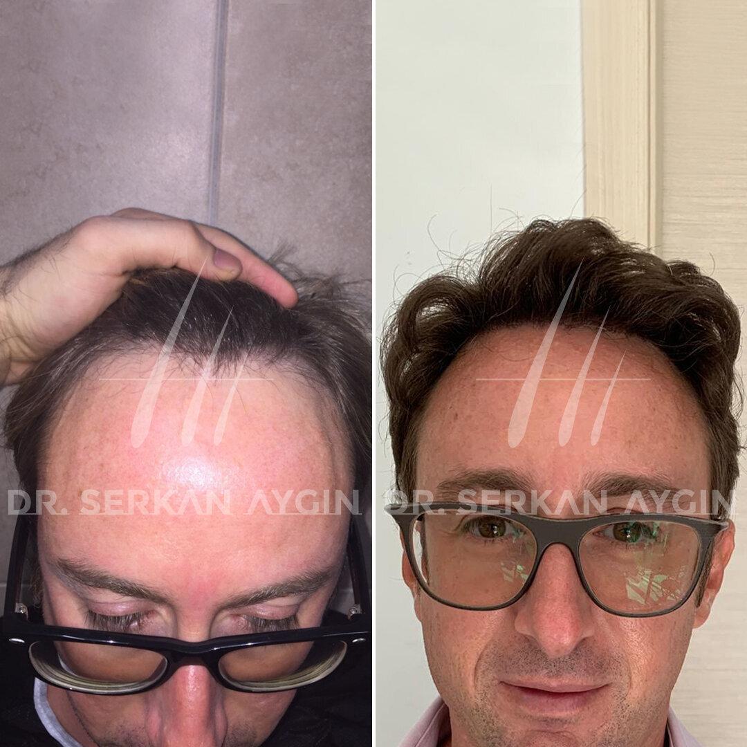dr serkan aygin clinic doing hair transplant operation