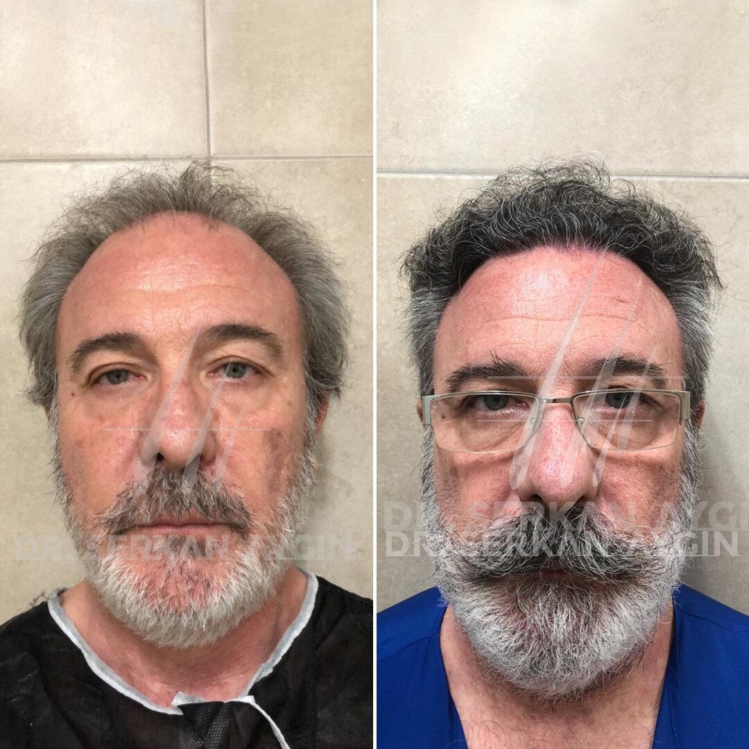 dr serkan aygin clinic hair transplant operation room corridor