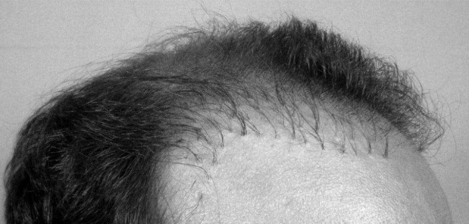 Причините отвъд Трансплантациите на коса