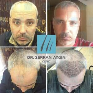 Hair transplantation before and after BA13