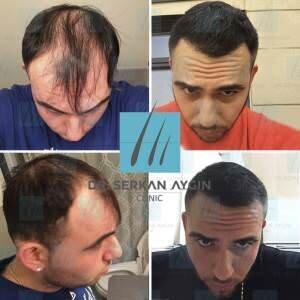Hair transplantation before and after BA17