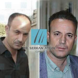 Hair transplantation before and after BA18