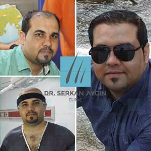 Hair transplantation before and after BA19