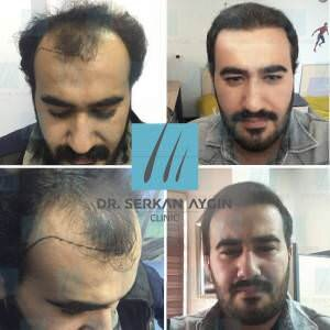 Hair transplantation before and after BA1 / 4200 Graft