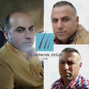 Hair transplantation before and after BA20