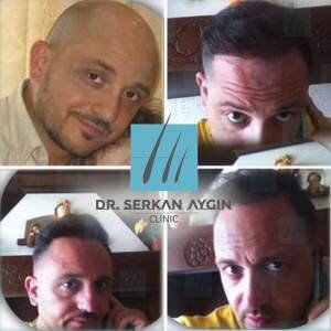 Hair transplantation before and after BA22