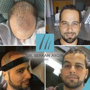 Hair transplantation before and after BA25