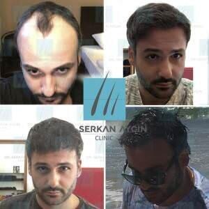 Hair transplantation before and after BA26