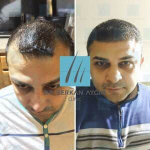 Hair transplantation before and after BA33