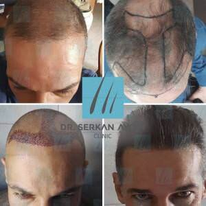 Hair transplantation before and after BA34