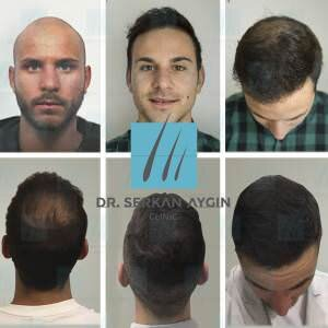 Hair transplantation before and after BA35 / 3200 Graft