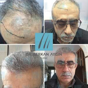 Hair transplantation before and after BA39