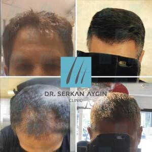 Hair transplantation before and after BA3 / 3200 Graft