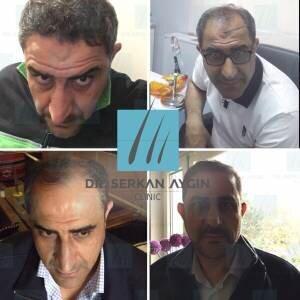 Hair transplantation before and after BA40