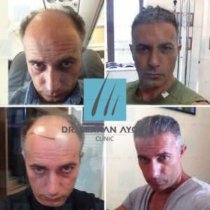Hair transplantation before and after BA44 / 3600 Graft