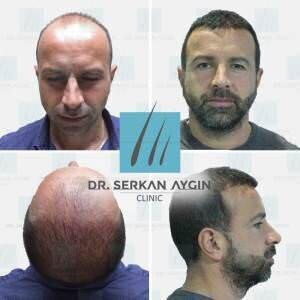Hair transplantation before and after BA45