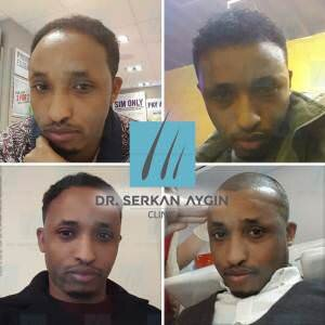 Hair transplantation before and after BA46