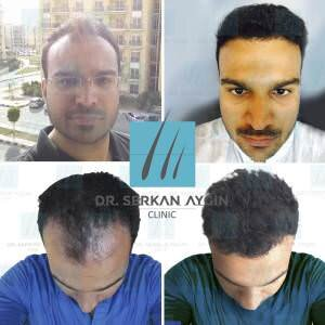 Hair transplantation before and after BA6 / 3700 Graft