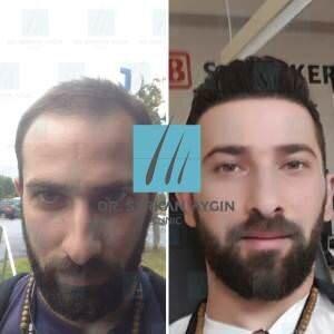 Hair transplantation before and after BA7