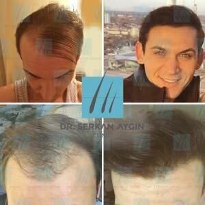 Hair transplantation before and after BA8 / 3500 Graft