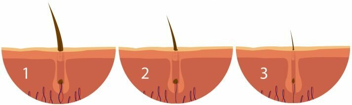 Erkeklerde Androgenetik Alopesi Sorunu