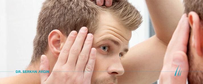Motivos que causan la pérdida de cabello en los hombres | Dr. Serkan Aygin