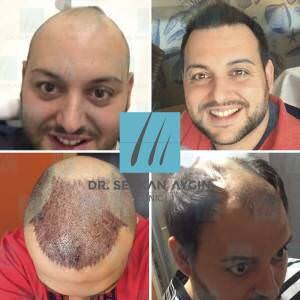 Hair transplantation before and after FB17-024