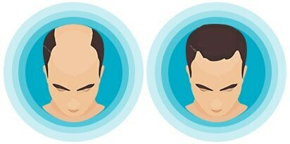 Top 8 Things You Need To Verify Before Choosing A Hair Transplant Surgeon