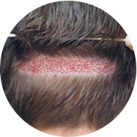 Присаждане на коса без обръсване