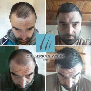 Hair transplantation before and after ba-61