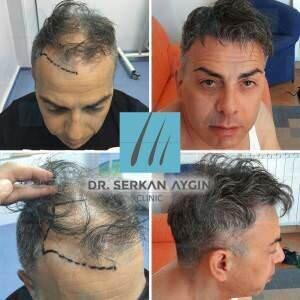 Hair transplantation before and after ba-65