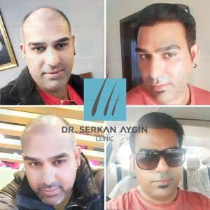 Hair transplantation before and after ba-81