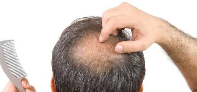 man thinking about hair loss