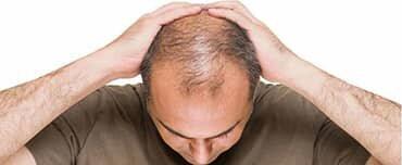 man needs hair transplant