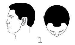 סוג 1 - קו שיער נסוג