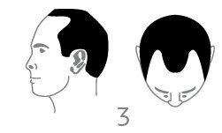 סוג 3 - אובדן שיער קל עד בינוני