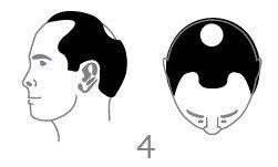 סוג 4 - נשירת שיער בינונית