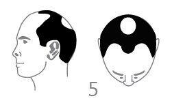 Duża utrata włosów