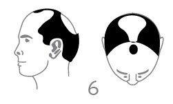 סוג 6 - אובדן שיער גדול באופן משמעותי