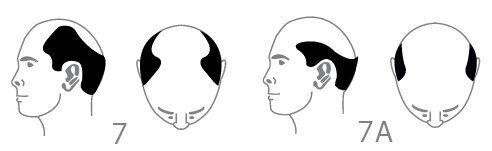 סוג 7 - אובדן שיער ראש