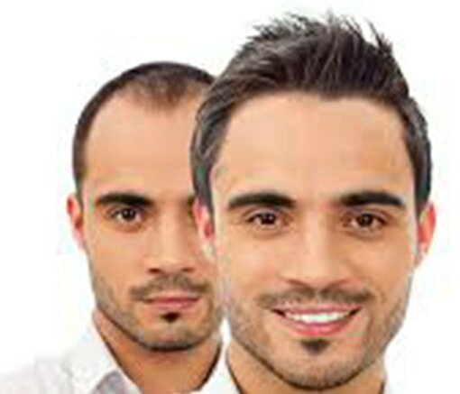 successful Hair Transplant