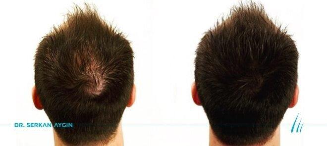 PRP Saç Bakımı Tedavisi Hakkında Bilmeniz Gerekenler