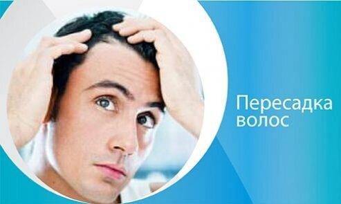 Пересадка волос-mobil