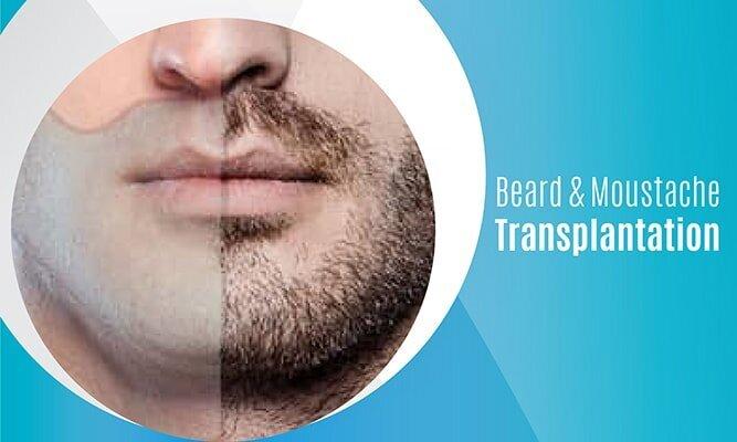 EN Beard & Moustache Transplantation-mobil
