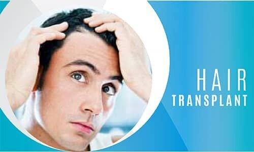 EN Hair Transplant-mobil