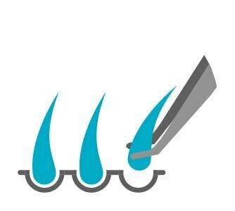 השלב המכריע השני: מיצוי שתלים ללא גרימת נזק