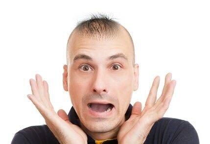 başarısız saç ekimi